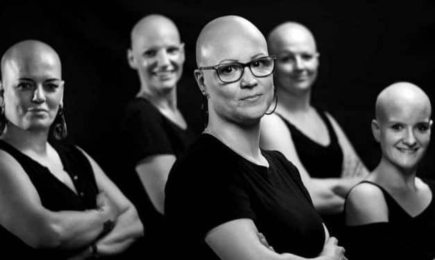 Alopecia femenina: contra el estigma de las mujeres calvas