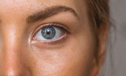 Envejecimiento prematuro: cómo prevenir y tratar este trastorno de la piel